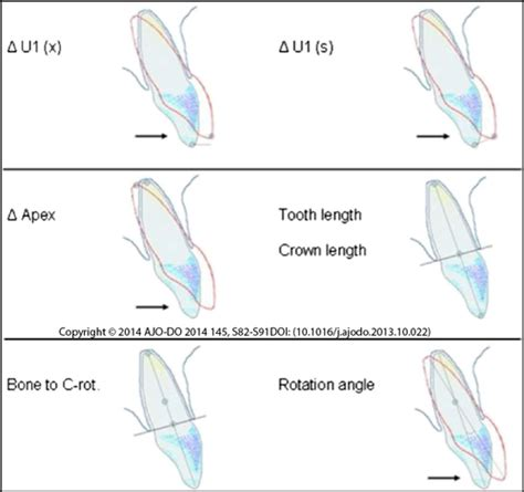 Tooth Movement Diagram by Orthodontic Tooth Movement With Invisalign 174 Aligners