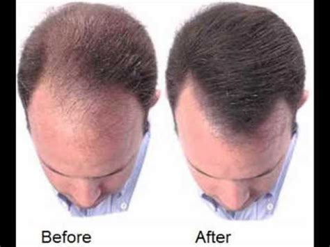 emu oil for hair loss after 3 hair loss how to regrow hair naturally before and after photos youtube