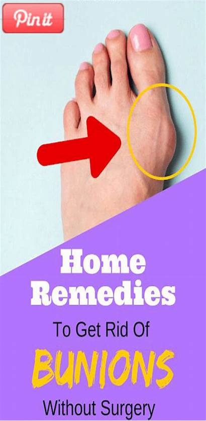 Bunion Rid Bunions Surgery Without Remedies Cough
