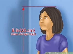 How To Diagnose Turner Syndrome  11 Steps  With Pictures