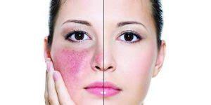 acne rosacea dieet