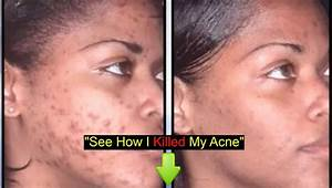 Acne Before After - YouTube