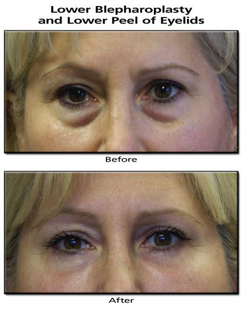 blepharoplasty-lower-peel-eyelids-1