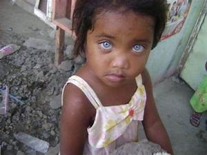 20 Amazing Pictures of Black People with Blue Eyes