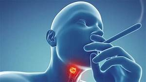 Throat Cancer Images Pictures