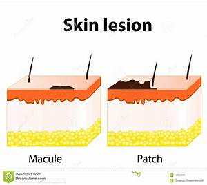 Macule And Patch  Types Of Skin Lesions Stock Vector