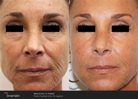 co2 laser for wrinkles