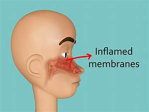 Diagram Of A Stuffy Nose
