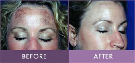 blue light treatment for sun damage photodynamic therapy treatment in lititz randalicentre com