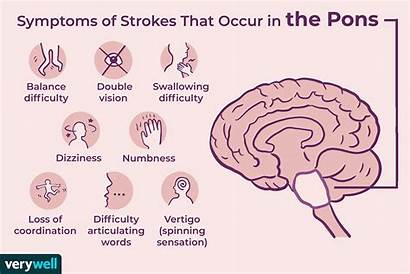 Pons Stroke Brain Region Symptoms Allison Verywell