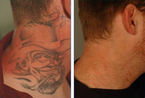 Effacer Son Tatouage Tattoosfr
