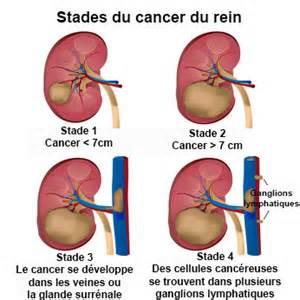 Cancer Du Poumon Stade 4 Espérance De Vie by Sympt C3 B4mes Cancer Estomac