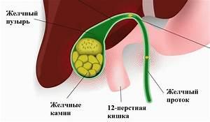 Камни в желчном пузыре лечение при диабете