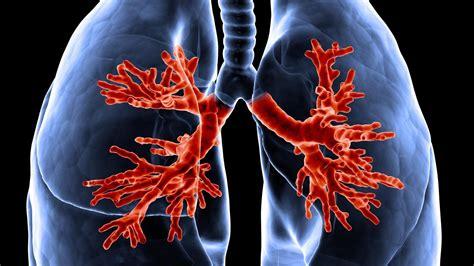 mucoviscidose esp 233 rance de vie sympt 244 mes traitement