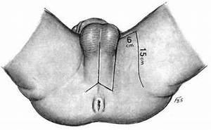 Triangular Ligament In Urethroplasty - Reconstructive Surgery