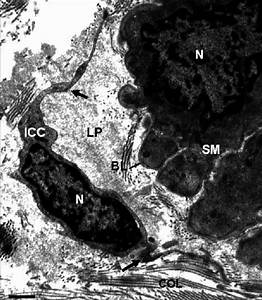 Interstitial Cajal