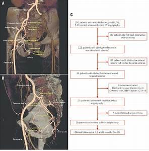 Anatomical Arterial Diagram
