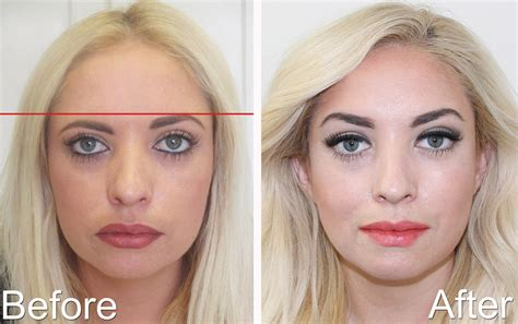 Enhancement Botox Luvaderm Restylane Latisse  Esthetic Eyes