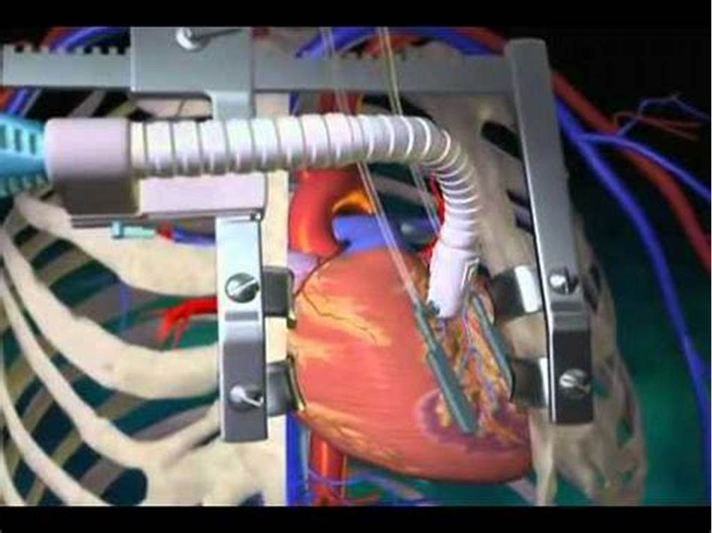 #Off #Pump #Coronary #Artery #Bypass #Surgery #What #Is #An #Opcab