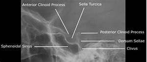 Sella Turcica - Bone, Function, Site, Location, Anatomy ...