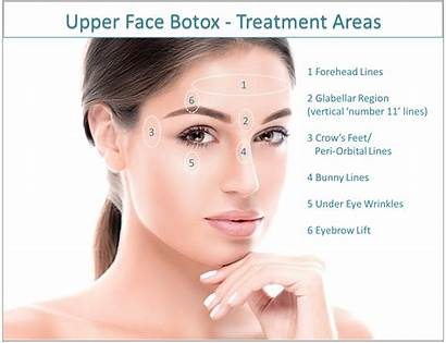 Botox Forehead Treatment Areas Face Lines Frown