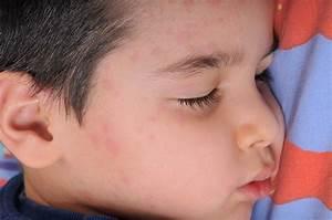 Mumps Vaccine Guide   Immunization Info