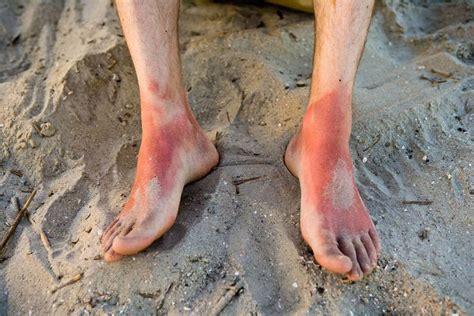 sonnenallergie erste hilfe bei mallorca akne fit  fun