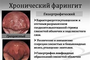 Формула лекарственный препарат от простатита