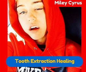 Tooth Extraction Healing Process  Stages   Prevention Tips