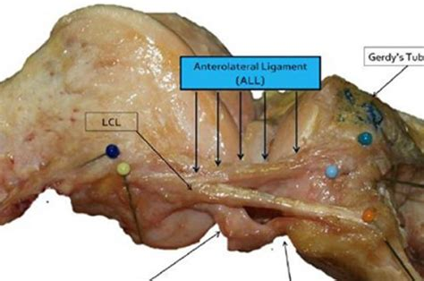 The Anterolateral Ligament A Life And (slight) Death Of Wrong Information On The Internet The