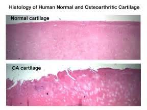 Image result for cartilage