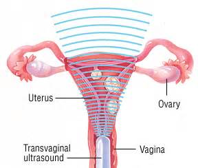 dysfunctional uterine bleeding guide causes symptoms and