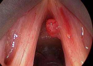 Throat Polyps Symptoms  Cancer  Pictures  Treatment