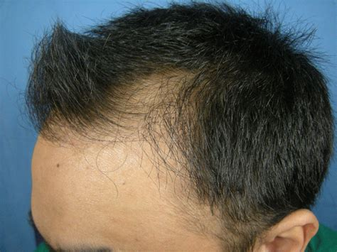 Minoxidil Shedding Phase Pictures by Minoxidil Hairstylegalleries