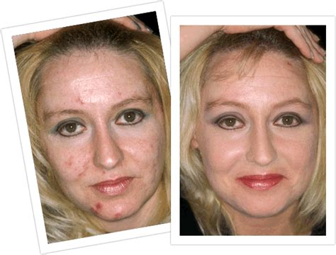 laser treatments ukacne before after laser treatments uk