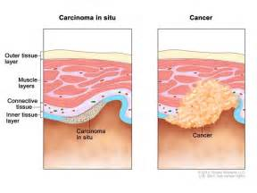 Carcinoma Situ Bladder Cancer