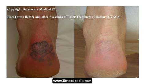 Laser Tattoo Removal Aftercare 09. Washington State Insurance Patent Lawyers Nyc. Best Law Firm Management Software. Point Of Sale Computer System. Bad Side Effects Of Birth Control. Ecac Engineer Your Career Macomb Car Dealers. Laser Eye Surgery Glaucoma Cell Phone Theory. Basic Investment Strategies Visa Bonus Card. Memphis Bankruptcy Attorney Irs Fresh Start