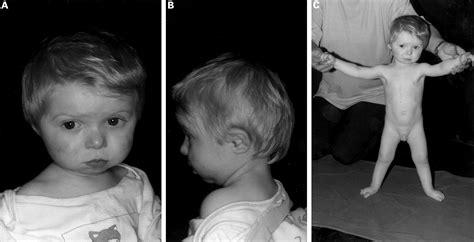 Split Handsplit Foot Malformation Associated With