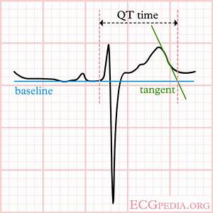Long QT Syndrome Electrocardiogram Wikidoc