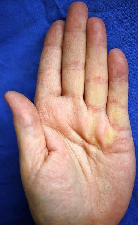 handchirurgie hannover marienstr orthopaede