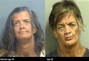 Pin by Charlotte J. on before and after METH | Pinterest ...