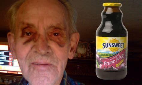 elderly man left   black eye  bottle  prune