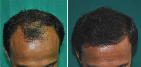 Hair Implants Rome City In 46784 Dr Verret Follicular Hair Transplants Surgery Hair