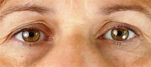 Dark Circles Under Eyes, 3 Main Causes & Treatment