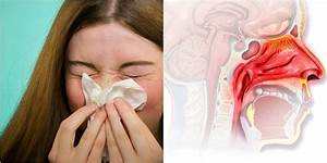 7 Science Backed Home Remedies To Clear A Stuffy Nose Instantly