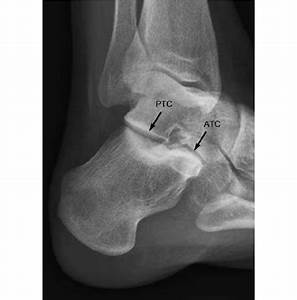 Brod U00e9n Projection Of The Calcaneus  Ptc Posterior Talocalcaneal Joint
