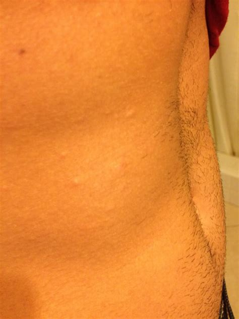 Heat Rash From Tanning Bed by Skin Rash From Tanning Bed Breeds Picture
