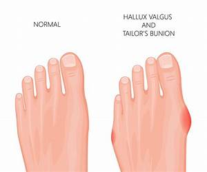 What Is A Bunion And Do I Need To Get Mine Treated