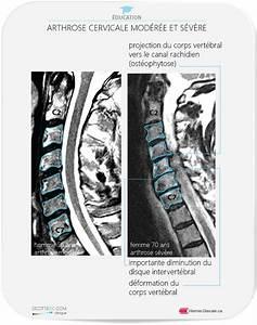 Hernie discale cervicale et myelopathie par cervicarthrose