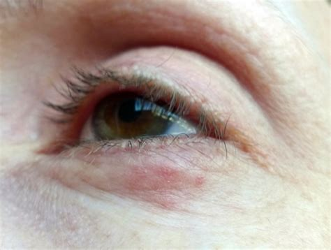 small red pimples   eyelid thread discussing